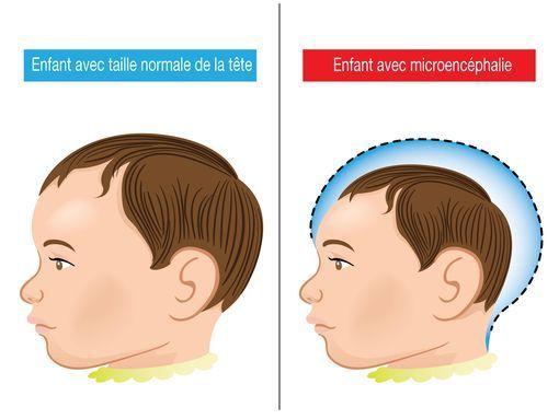 Microcéphalie Symptômes Et Causes