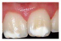 taches oranges sur les dents