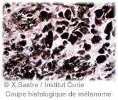 Recherche fondamentale sur les cancers de la peau