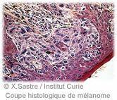 Recherche clinique sur les cancers de la peau