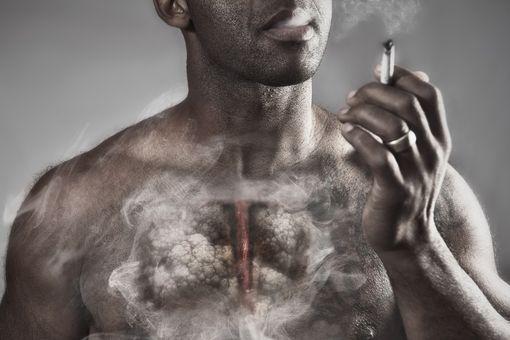 Facteurs de risque et prévention du cancer du poumon ...