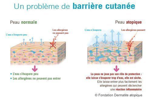 probleme-barriere-cutainee