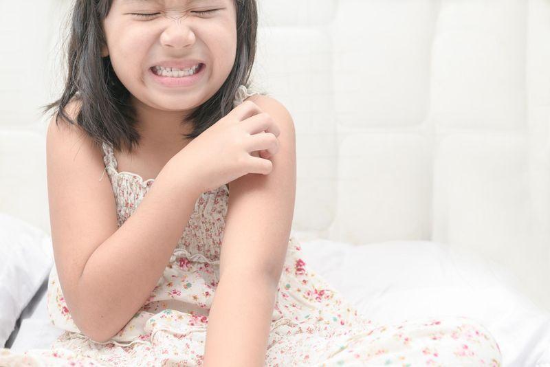 Psoriasis de l'enfant