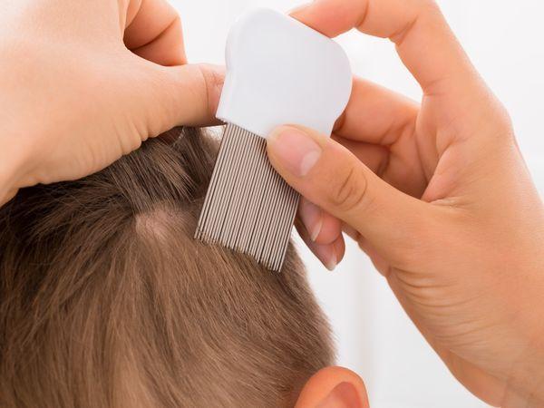 c6645a671b Comment éliminer les poux et les lentes ? - Doctissimo