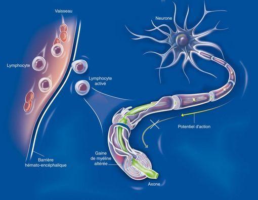 sclerose en plaques