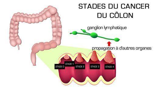 stade cancer colorectal