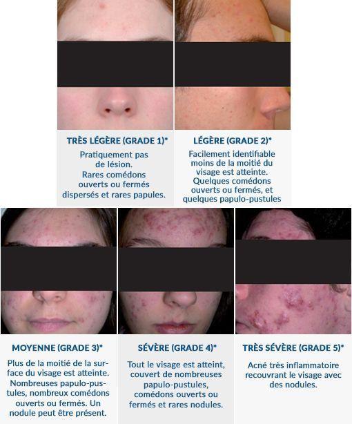 stades de gravité de l'acné