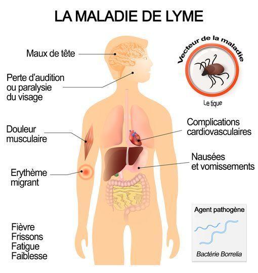 Symptômes et complications de la maladie de Lyme