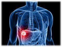 Ultrasons cancer du foie