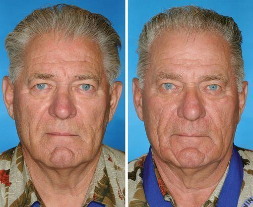 vieillissement de la peau et tabac