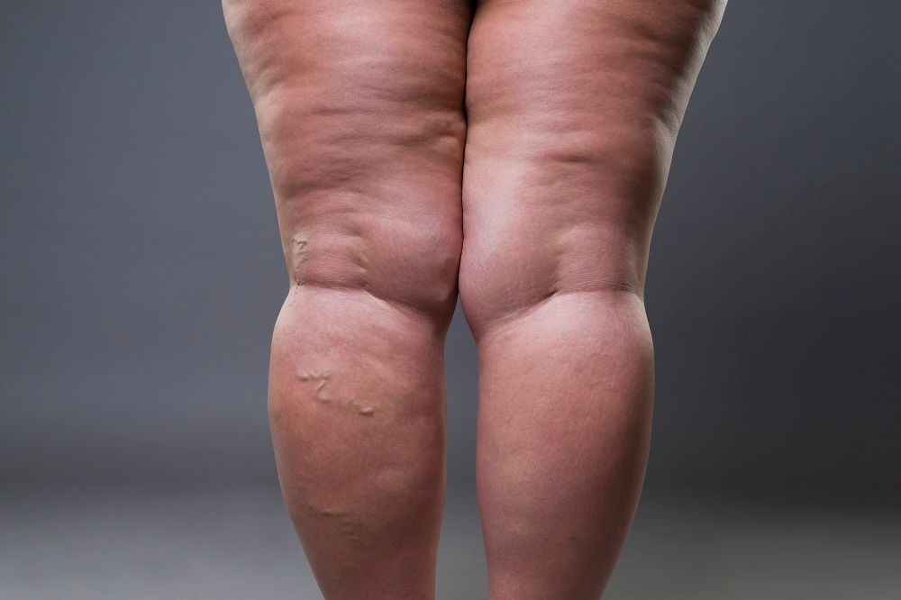 grosses-jambes-wd