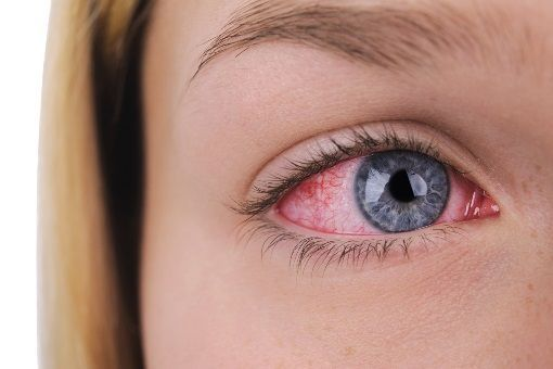 Herpès Oculaire Herpès Des Yeux Doctissimo