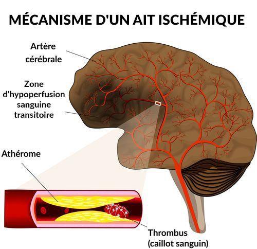 Mécanisme d'un AIT ischémique