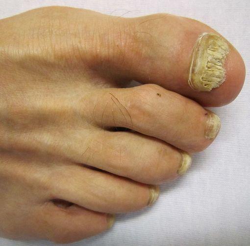 image mycose ongle pied
