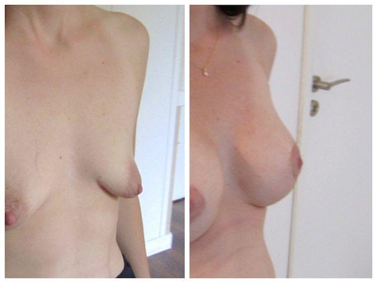 ptose mammaire 3