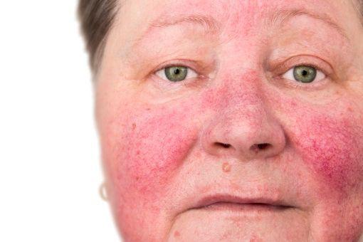 plaques rouges autour du nez