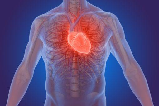 symptomes infarctus
