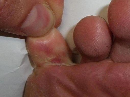 desquamation pied traitement