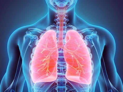 thermoplastie-bronchique-wd-510