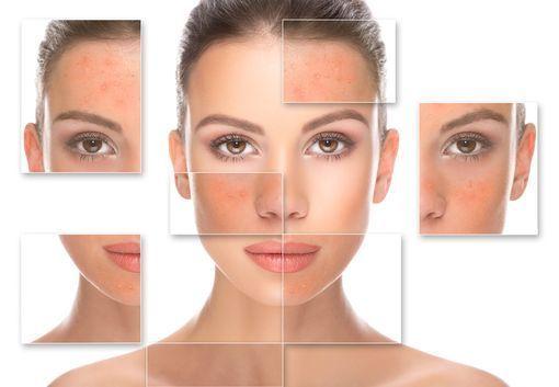 traitement médicamenteux acné
