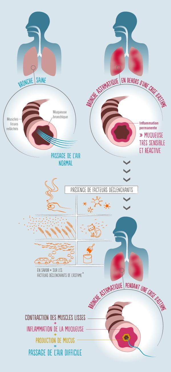 vue-globale-mecanisme-asthme