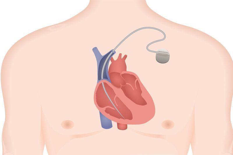 défibrillateurs cardiaques implantables