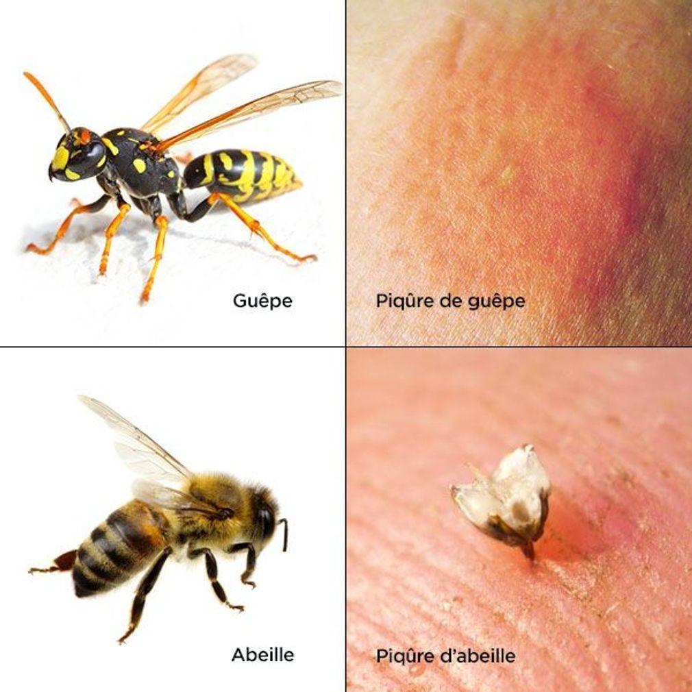 Les-piqures-de-guepe-et-d-abeille
