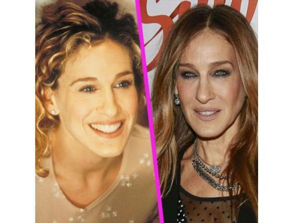 Stars : les pires ratés de la chirurgie esthétique !
