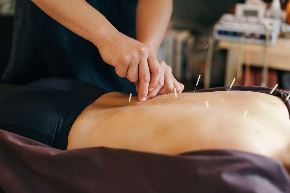 7 choses à faire ou ne pas faire après une séance d'acupuncture