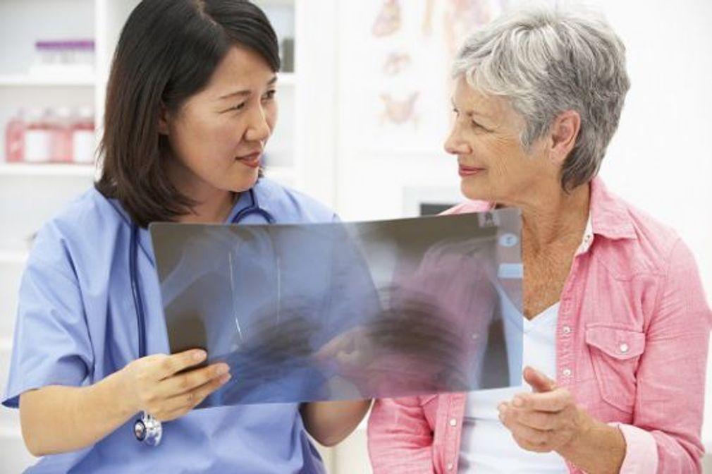 Pourquoi le cancer du poumon touche aussi les non-fumeurs ?