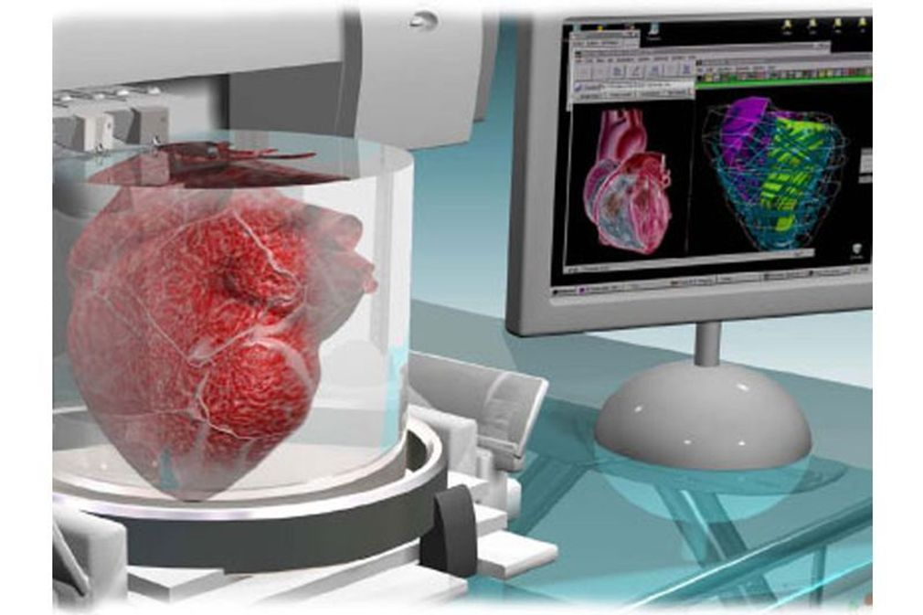 L'impression 3D révolutionne la médecine