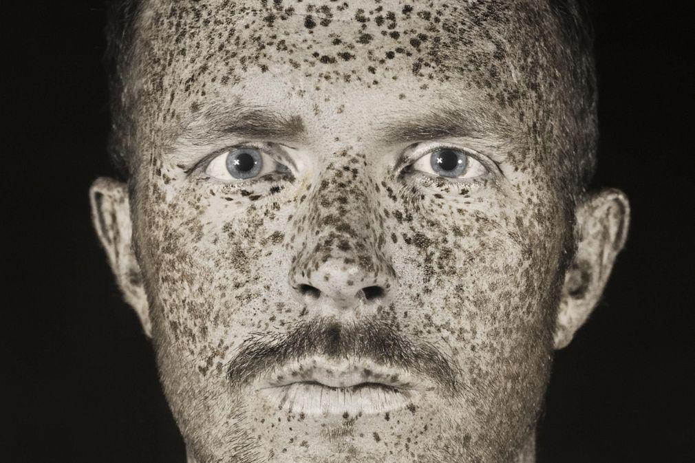 Des portraits en ultraviolets révèlent les dommages des UV sur la peau