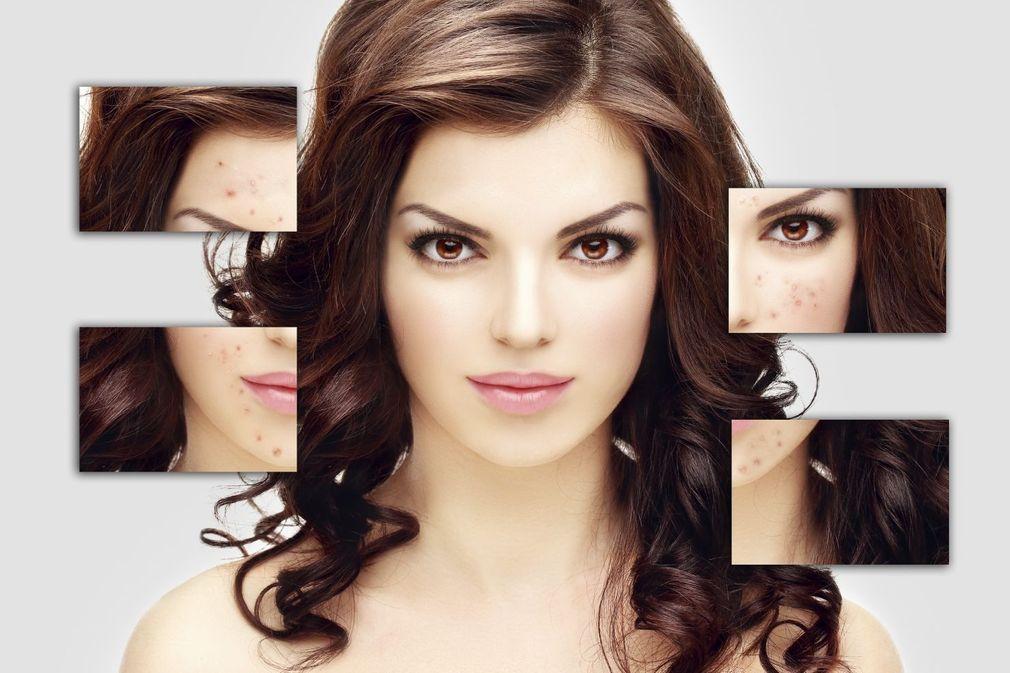 10 traitements naturels efficaces contre l'acné