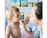 La varicelle chez l'enfant