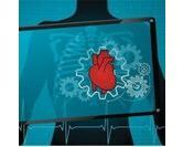 Calculez vos risques d'infarctus