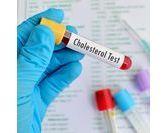 Mesurer son taux de cholestérol