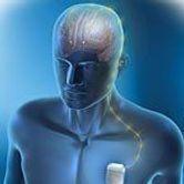 Vers des indications élargies de la neurostimulation