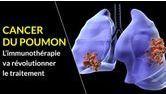 immunothérapie cancer du poumon