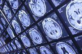 Le cerveau des personnes qui adoptent un comportement antisocial à long terme serait différent des autres