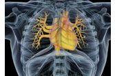 La transplantation cellulaire contre l'insuffisance cardiaque