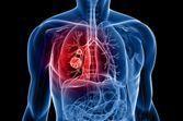 Dépistage du cancer du poumon : une intelligence artificielle plus précise que les radiologues