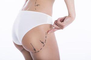 Une deuxième Britannique meurt après une chirurgie des fesses