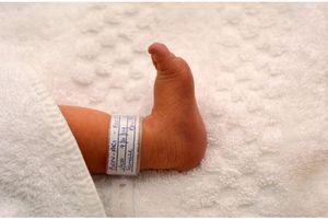 Bébés échangés : l'intérêt des bracelets d'identification
