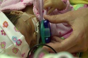 Les corticoïdes, dès la 23e semaine de grossesse, augmentent la survie des grands prématurés