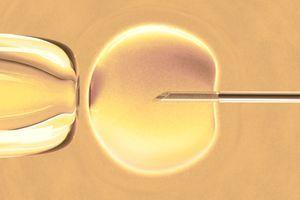 PMA : un recours aux FIV trop systématique ?