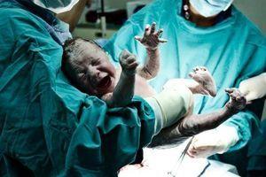 Plus de la moitié des décès maternels évitables