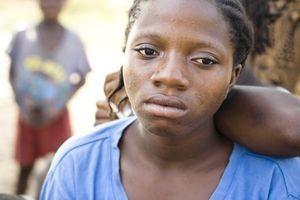 VIH: un traitement préventif protège les bébés allaités par leurs mères séropositives