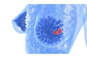 Cancer du sein : homologation européenne pour une nouvelle formulation de l'Herceptin