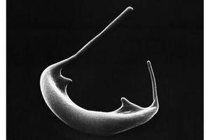 Drépanocytose : une thérapie génique prometteuse comme alternative aux greffes de moelle