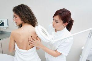L'immunothérapie diminue le risque de rechute du mélanome